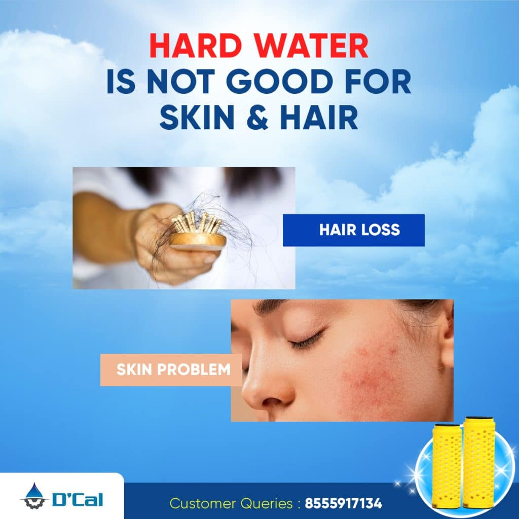 D'cal Hard Water solution for Skin problems